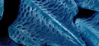 Антибактериальная кожа акулы поможет медицине стать более стерильной