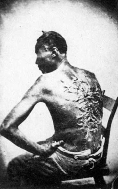 «Девятихвостая кошка» оставляла на спине жертвы рубцы на всю оставшуюся жизнь. Это американское фото сделано в 1863 г.